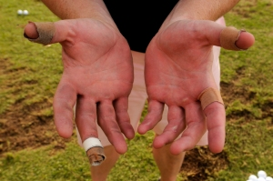 tips-to-prevent-blisters-in-golf